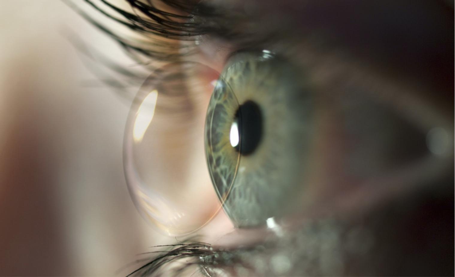 Kontaktlinsen, Wiesloch